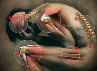 Spots where pain typically occurs on the body